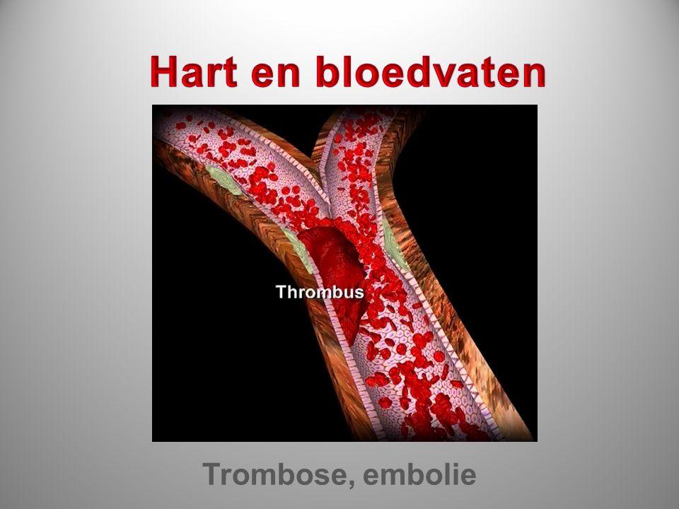 Hart en bloedvaten Trombose, embolie