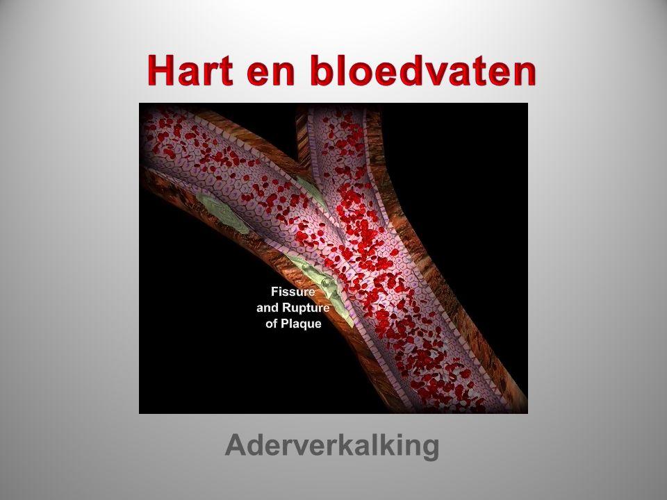 Hart en bloedvaten Aderverkalking