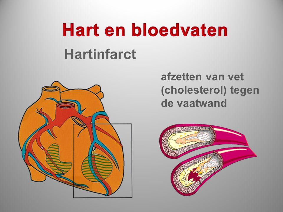 Hart en bloedvaten Hartinfarct