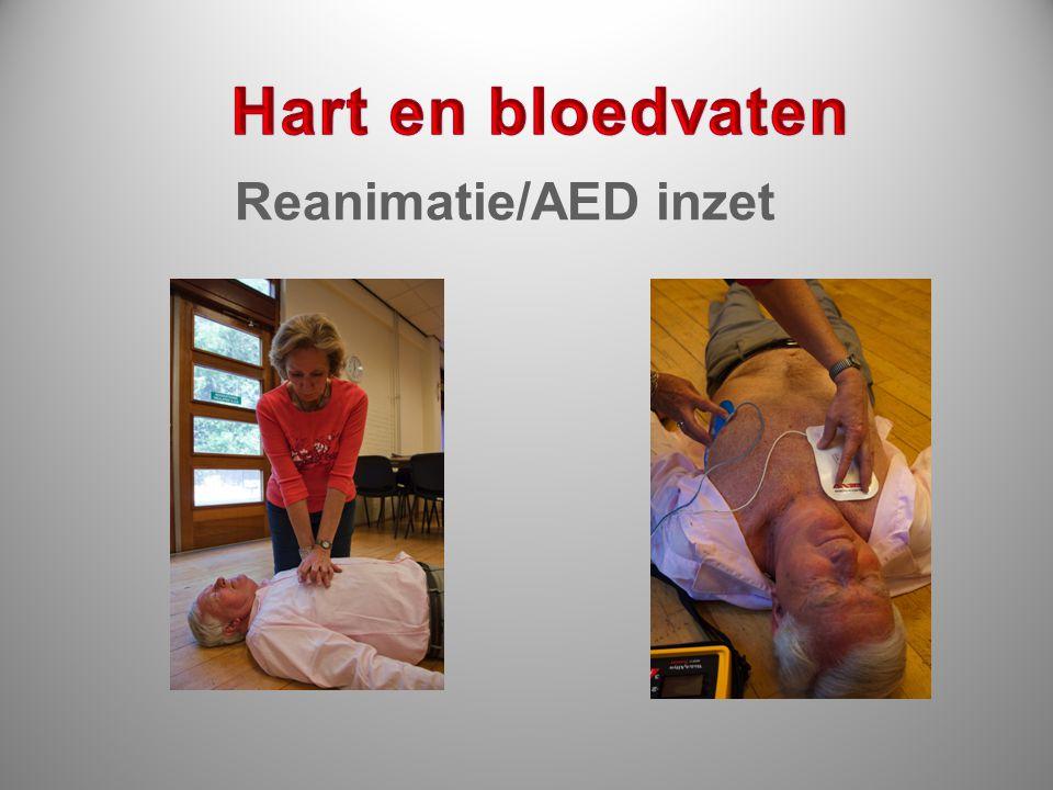 Hart en bloedvaten Reanimatie/AED inzet
