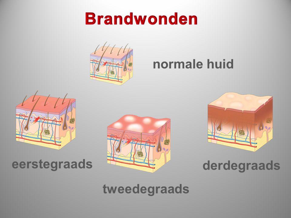 Brandwonden normale huid eerstegraads derdegraads tweedegraads