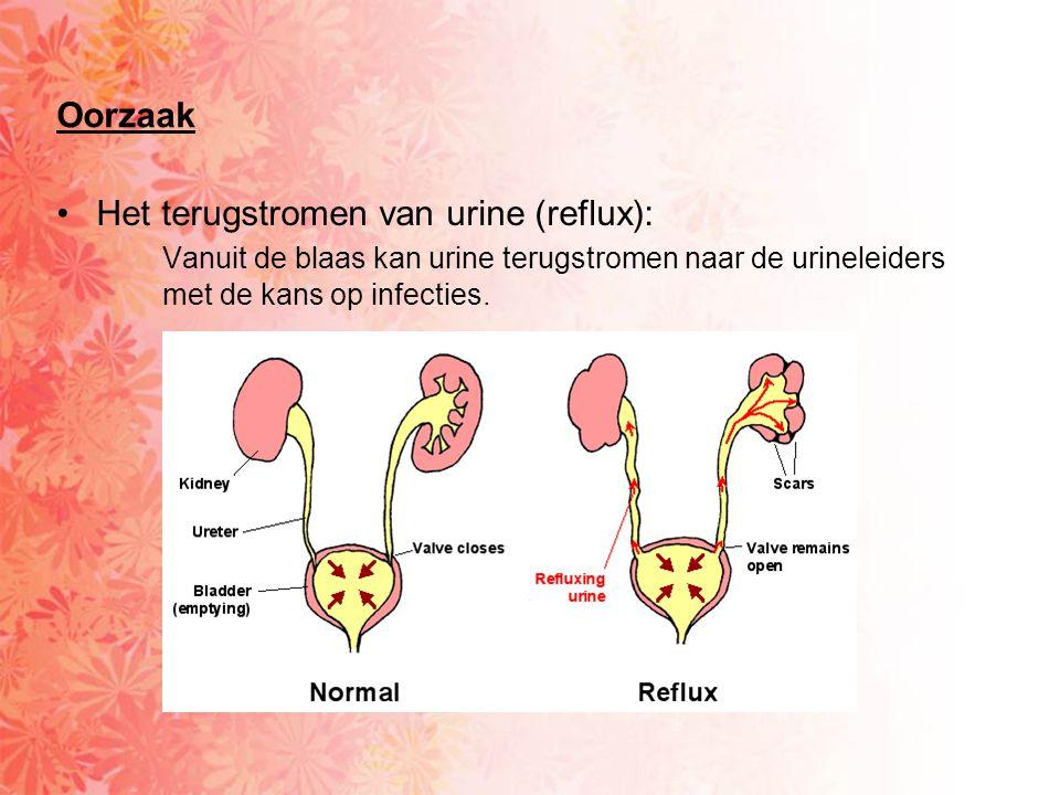 Oorzaak Het terugstromen van urine (reflux): Vanuit de blaas kan urine terugstromen naar de urineleiders met de kans op infecties.