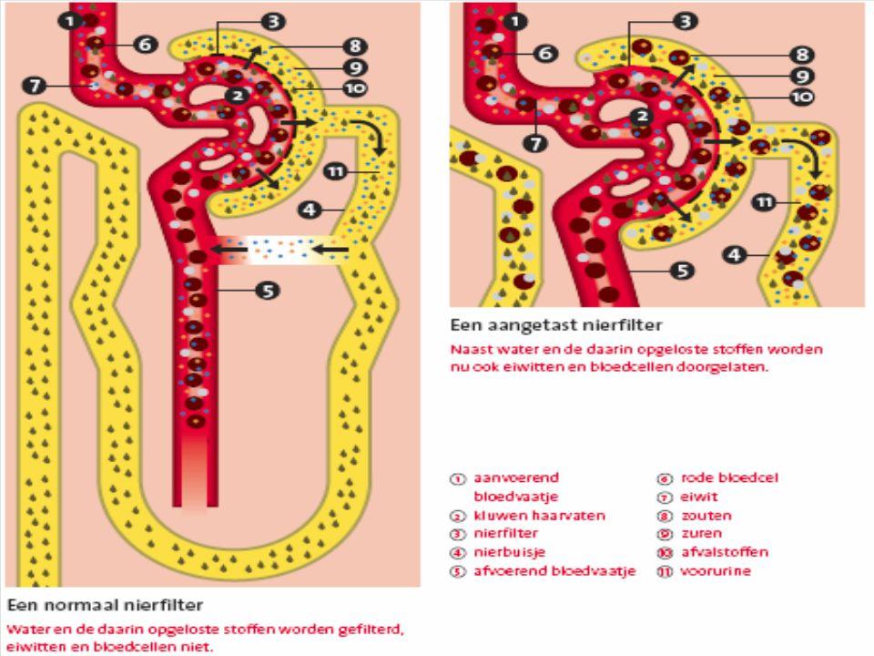 Nierfilterontsteking (glomerulonefritis)
