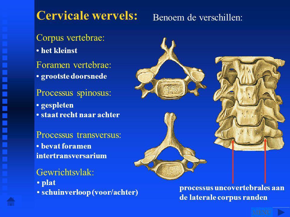Cervicale wervels: Benoem de verschillen: Corpus vertebrae: