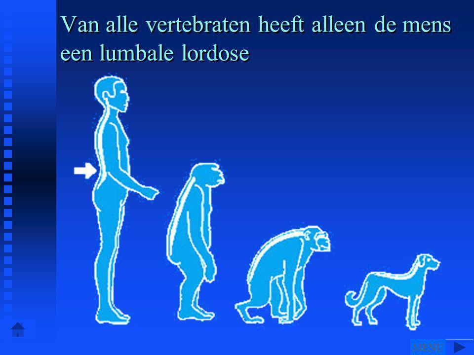 Van alle vertebraten heeft alleen de mens een lumbale lordose