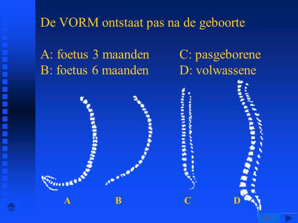De VORM ontstaat pas na de geboorte A: foetus 3 maanden C: pasgeborene