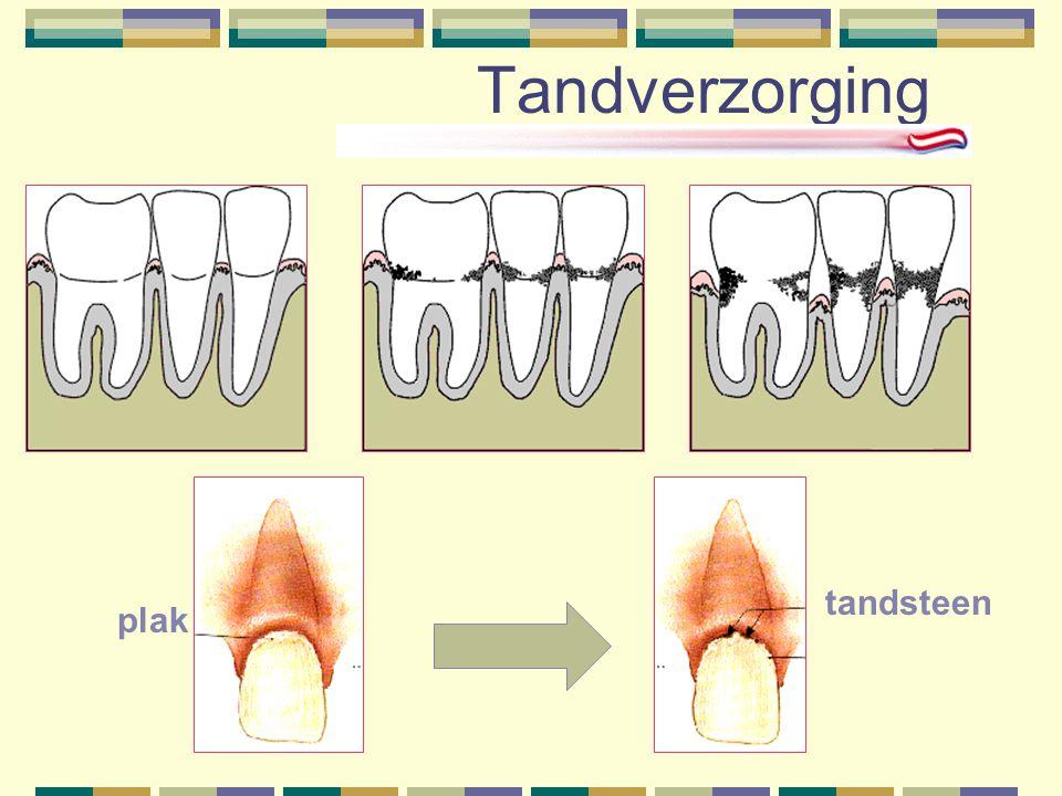 Tandverzorging tandsteen plak