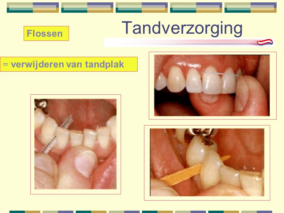 Tandverzorging Flossen = verwijderen van tandplak