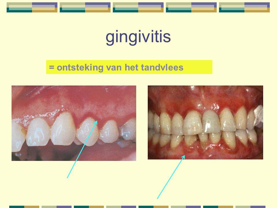 gingivitis = ontsteking van het tandvlees