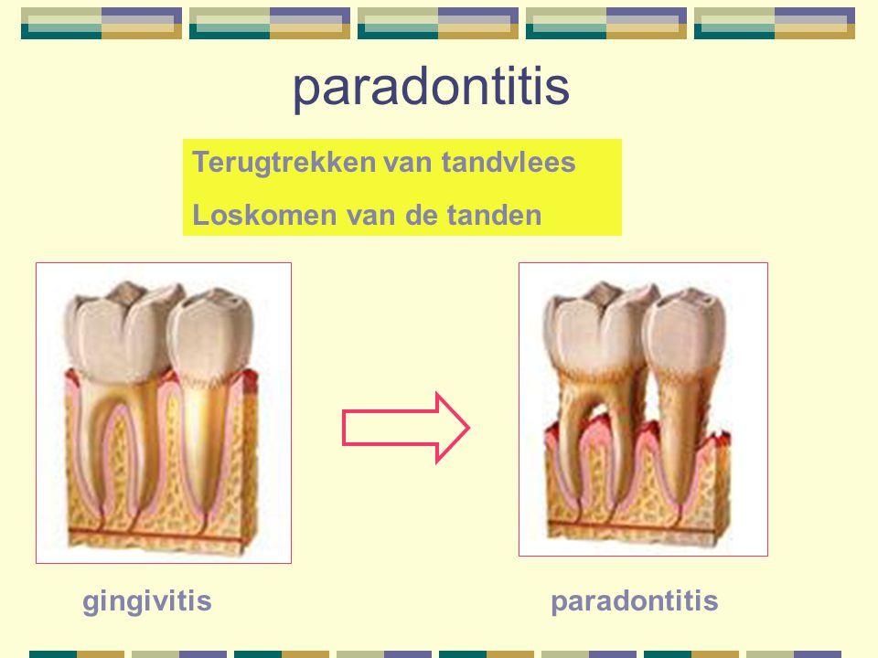 paradontitis Terugtrekken van tandvlees Loskomen van de tanden