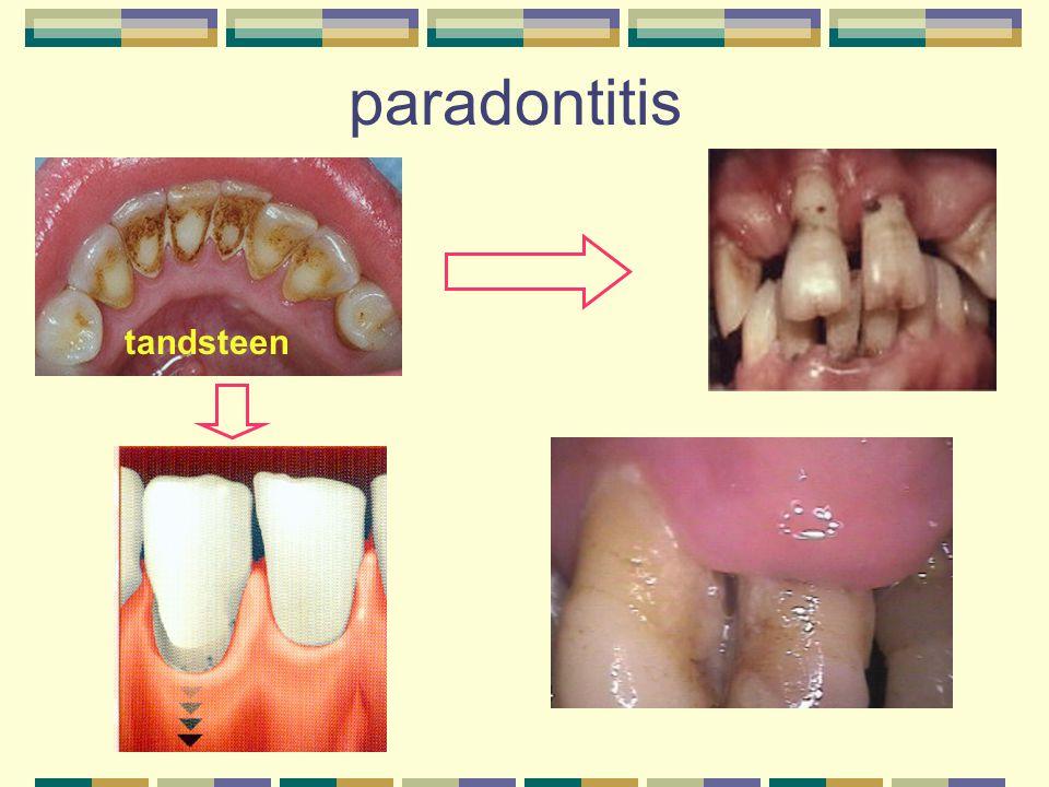 paradontitis tandsteen