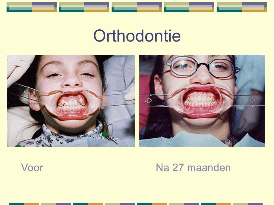 Orthodontie Voor Na 27 maanden