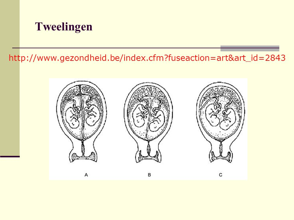 Tweelingen   fuseaction=art&art_id=2843