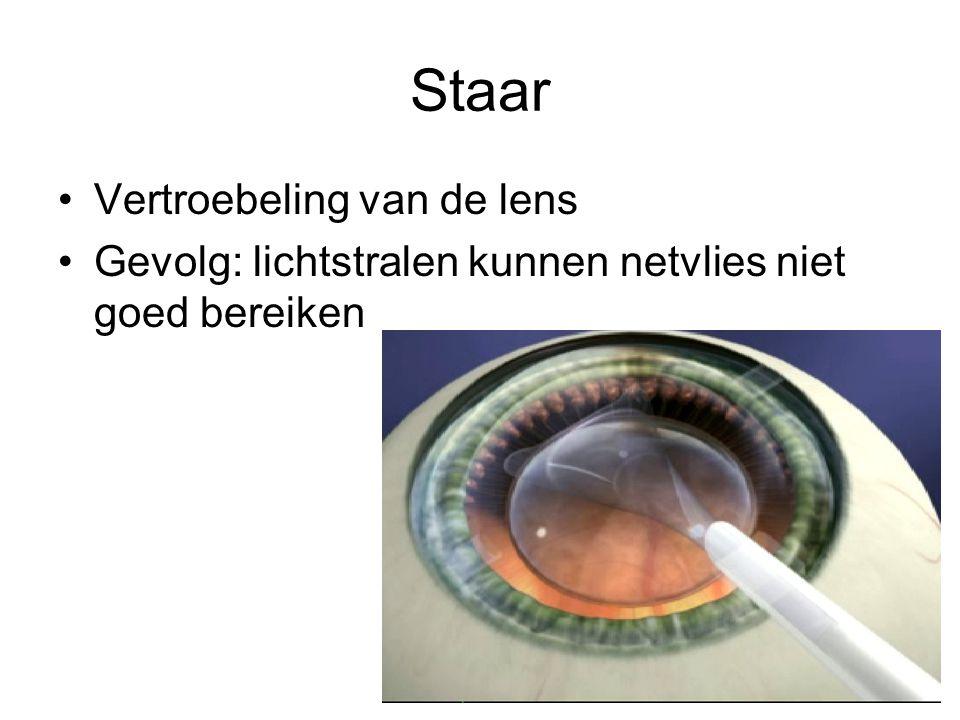 Staar Vertroebeling van de lens