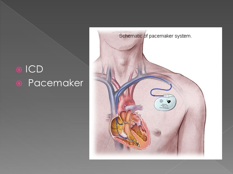 ICD Pacemaker