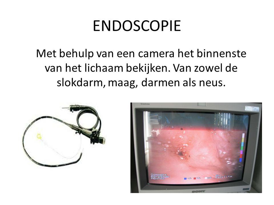 ENDOSCOPIE Met behulp van een camera het binnenste van het lichaam bekijken.
