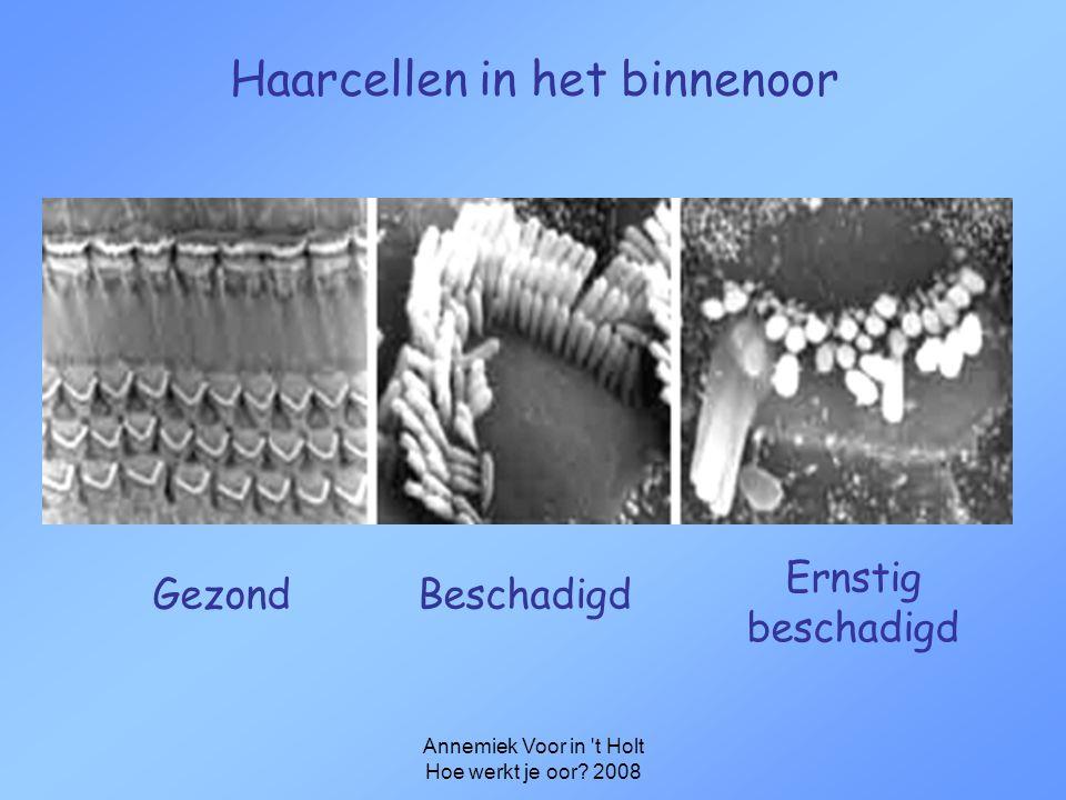 Haarcellen in het binnenoor