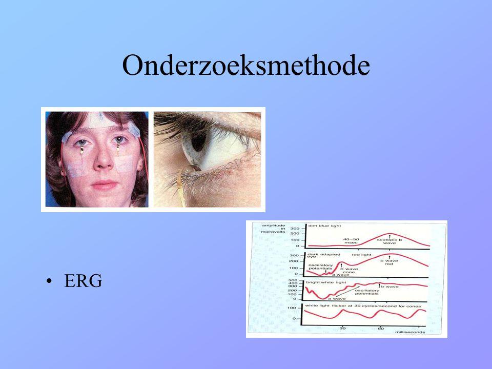 Onderzoeksmethode ERG