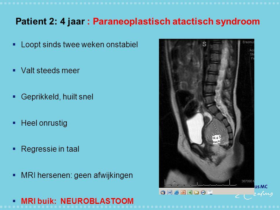 Patient 2: 4 jaar : Paraneoplastisch atactisch syndroom