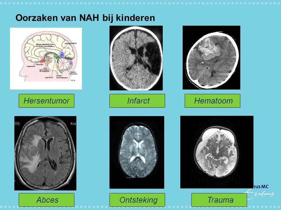 Oorzaken van NAH bij kinderen