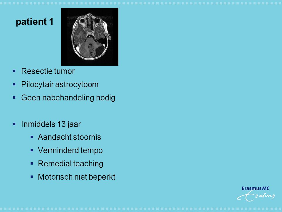 patient 1 Resectie tumor Pilocytair astrocytoom