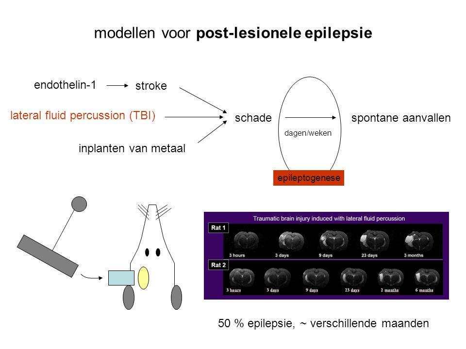 modellen voor post-lesionele epilepsie