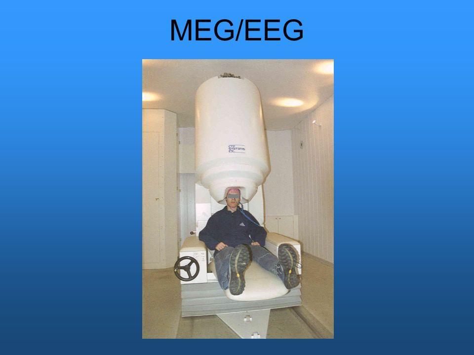 MEG/EEG