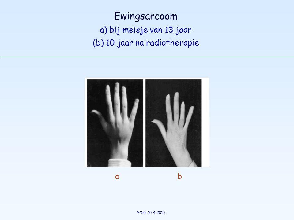 Ewingsarcoom a) bij meisje van 13 jaar (b) 10 jaar na radiotherapie