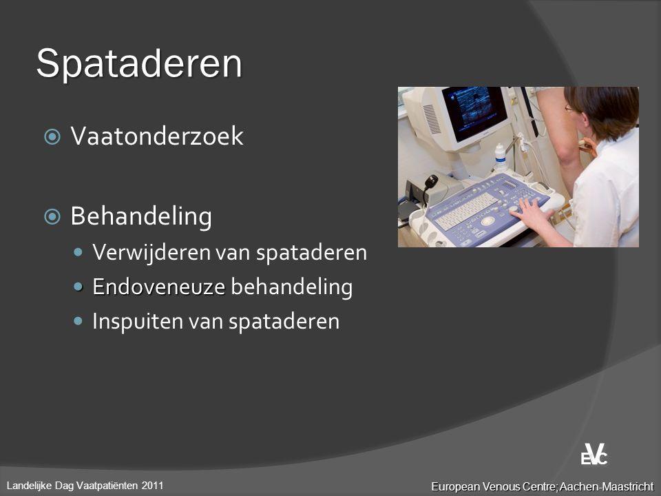 Spataderen V Vaatonderzoek Behandeling Verwijderen van spataderen