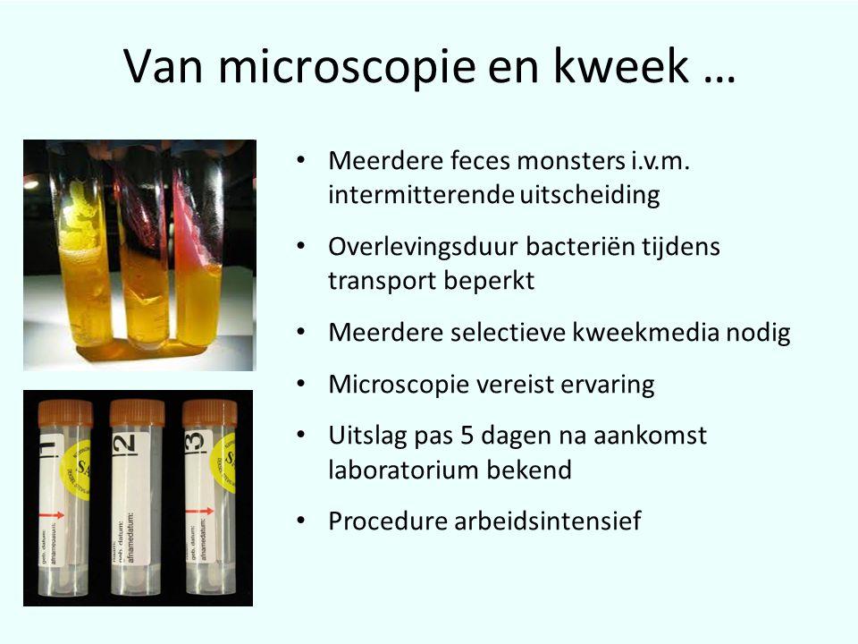 Van microscopie en kweek …