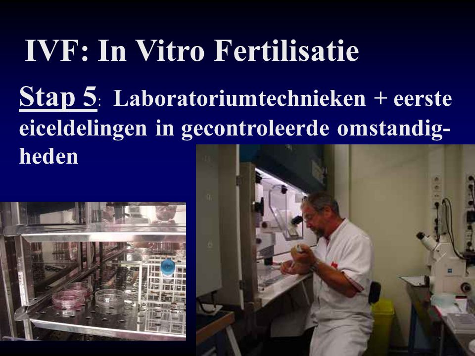 IVF: In Vitro Fertilisatie