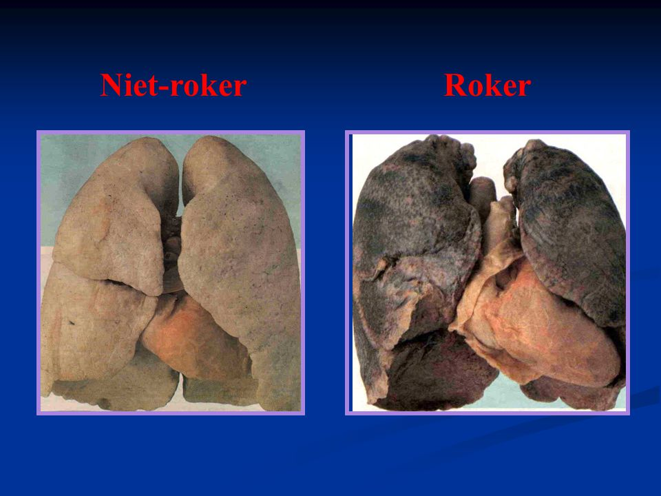 Niet-roker Roker 14