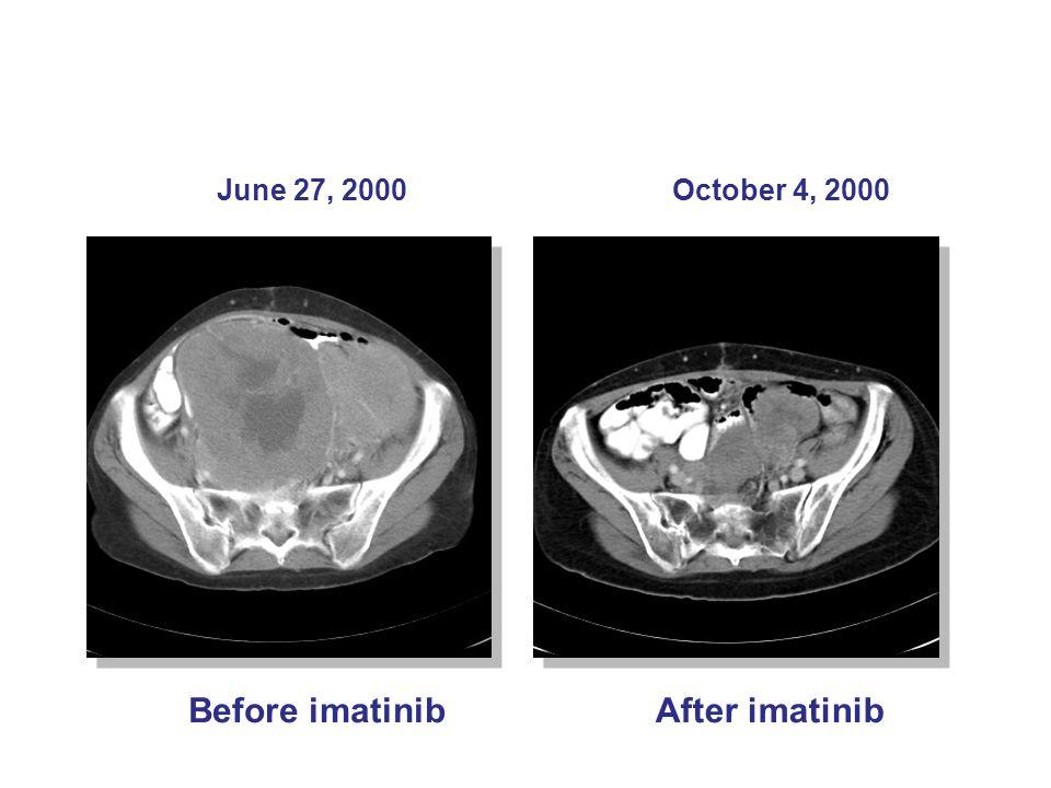 Before imatinib After imatinib June 27, 2000 October 4, 2000