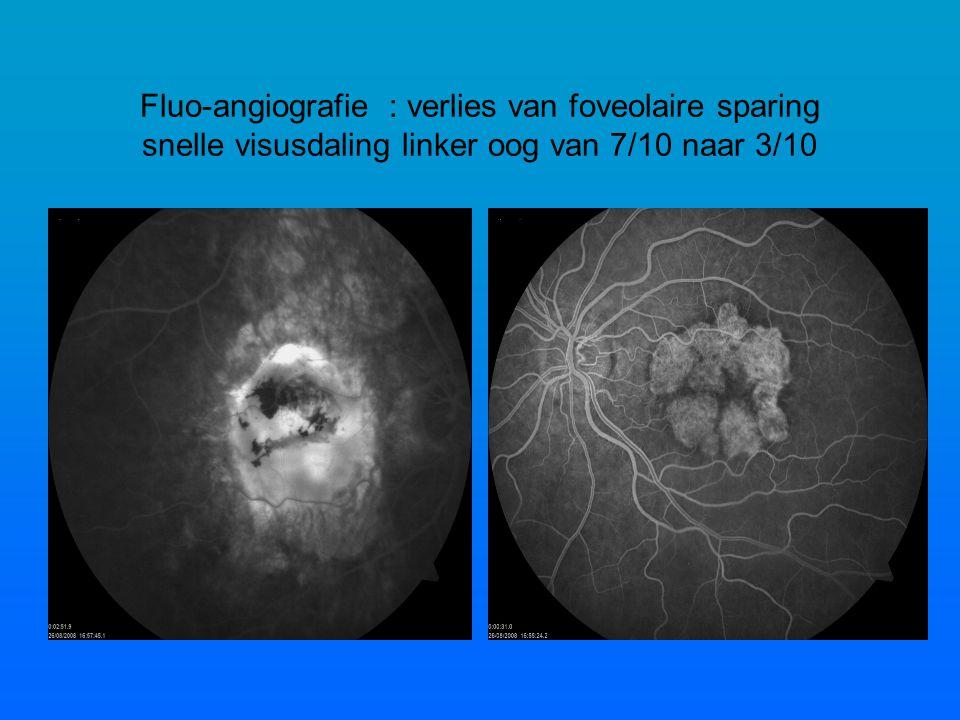 Fluo-angiografie : verlies van foveolaire sparing snelle visusdaling linker oog van 7/10 naar 3/10