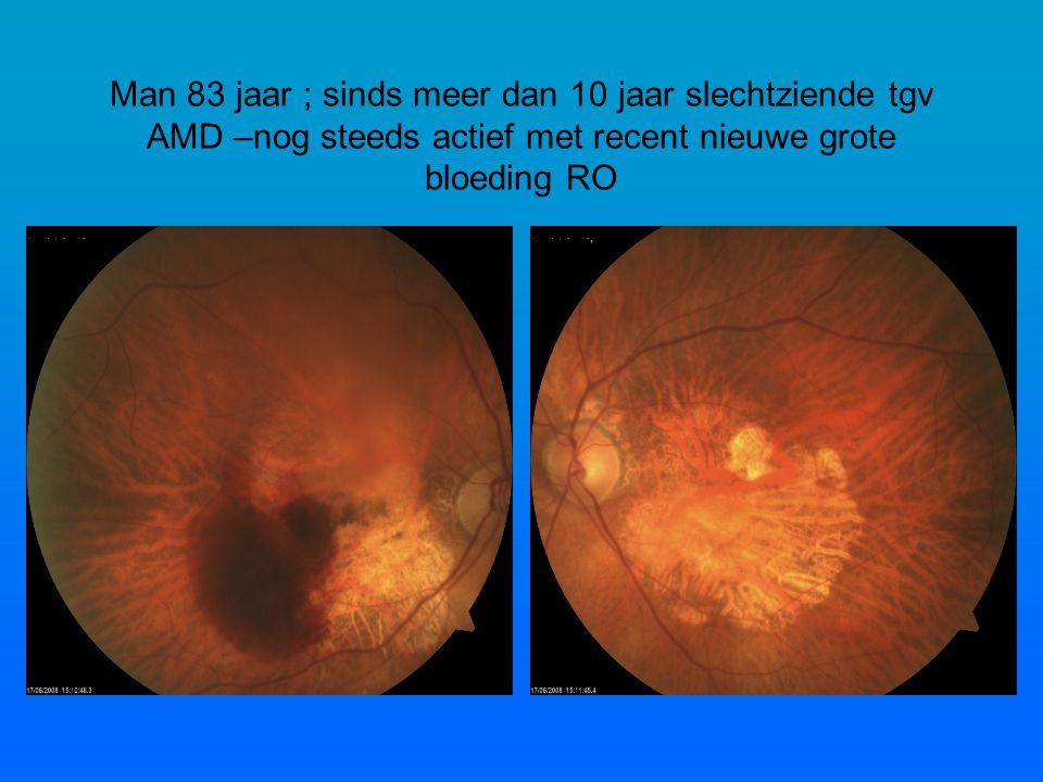Man 83 jaar ; sinds meer dan 10 jaar slechtziende tgv AMD –nog steeds actief met recent nieuwe grote bloeding RO