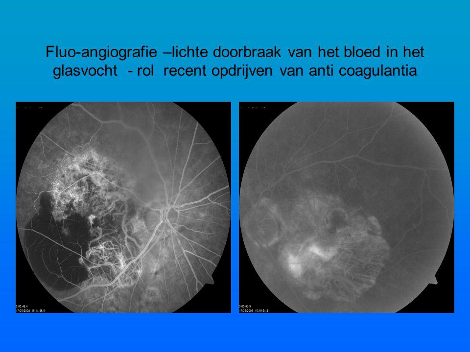 Fluo-angiografie –lichte doorbraak van het bloed in het glasvocht - rol recent opdrijven van anti coagulantia