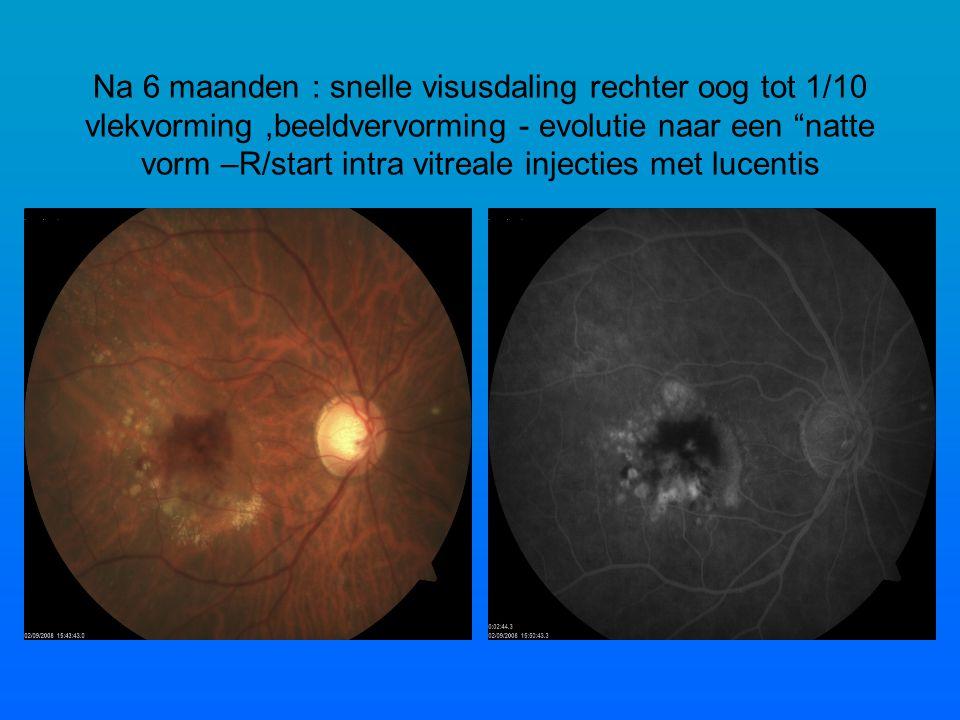 Na 6 maanden : snelle visusdaling rechter oog tot 1/10 vlekvorming ,beeldvervorming - evolutie naar een natte vorm –R/start intra vitreale injecties met lucentis