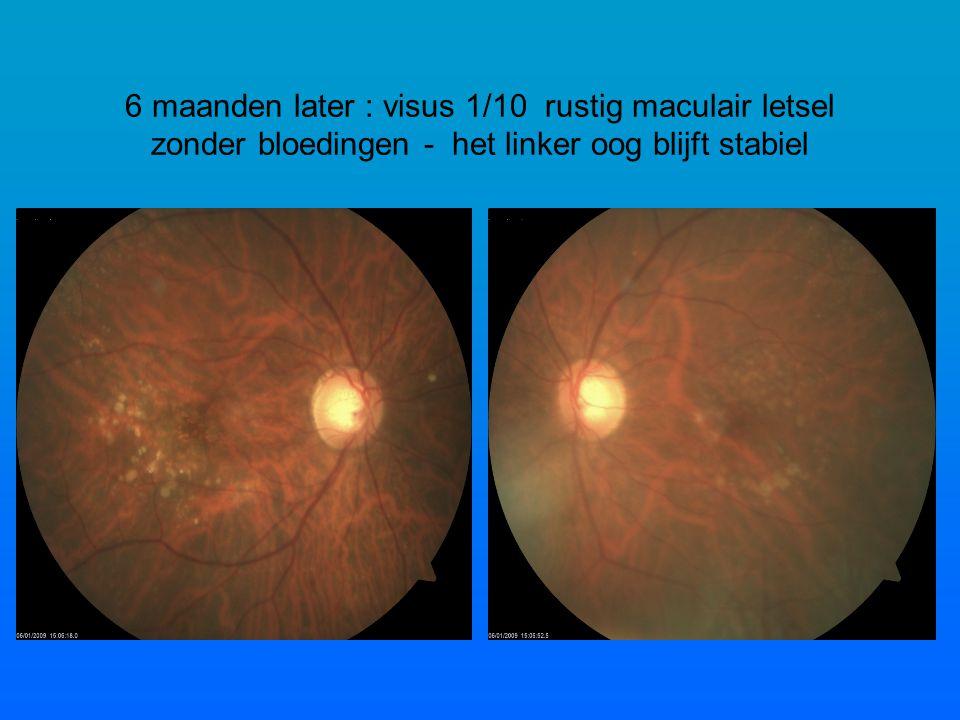 6 maanden later : visus 1/10 rustig maculair letsel zonder bloedingen - het linker oog blijft stabiel