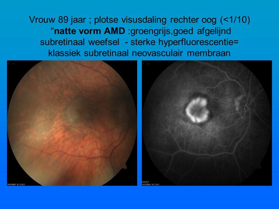Vrouw 89 jaar ; plotse visusdaling rechter oog (<1/10) natte vorm AMD :groengrijs,goed afgelijnd subretinaal weefsel - sterke hyperfluorescentie= klassiek subretinaal neovasculair membraan