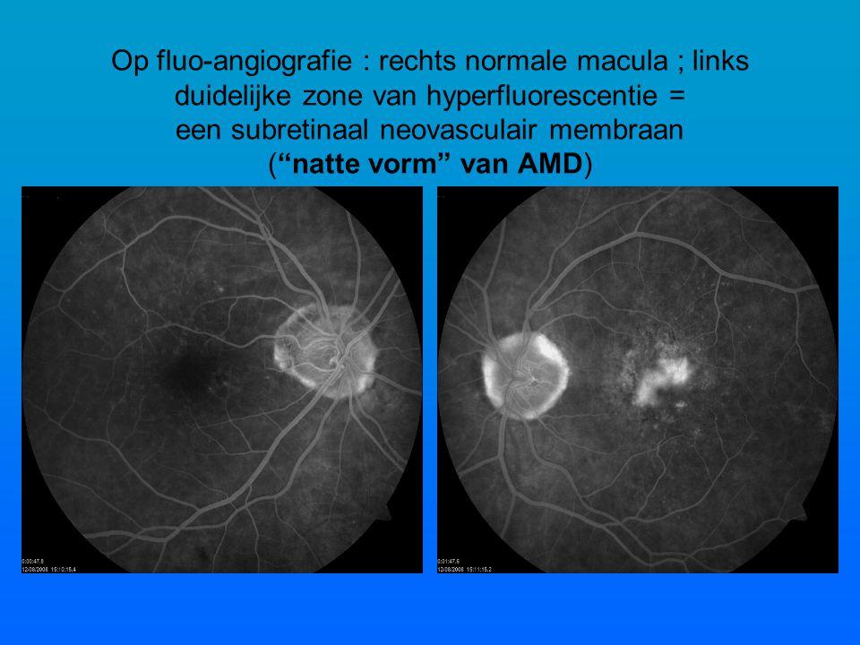Op fluo-angiografie : rechts normale macula ; links duidelijke zone van hyperfluorescentie = een subretinaal neovasculair membraan ( natte vorm van AMD)