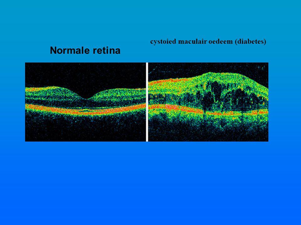 cystoied maculair oedeem (diabetes)