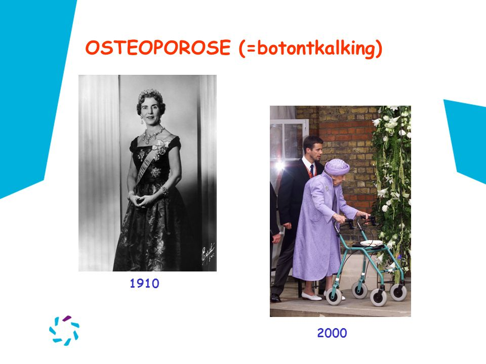 OSTEOPOROSE (=botontkalking)