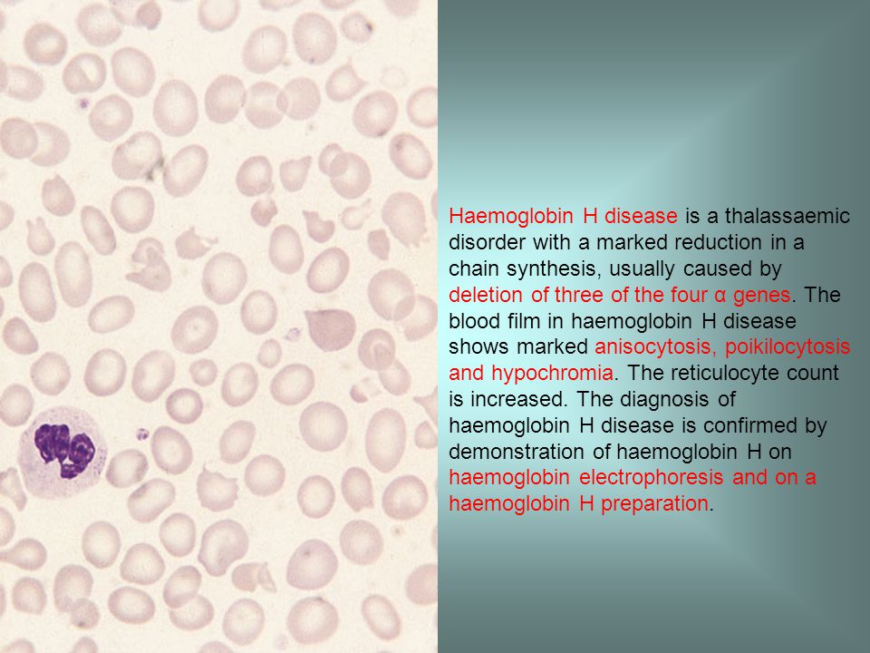 Haemoglobin H disease is a thalassaemic disorder with a marked reduction in a chain synthesis, usually caused by deletion of three of the four α genes.