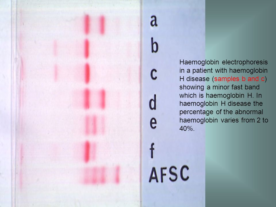 Haemoglobin electrophoresis in a patient with haemoglobin H disease (samples b and c) showing a minor fast band which is haemoglobin H.