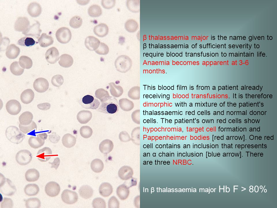 β thalassaemia major is the name given to β thalassaemia of sufficient severity to require blood transfusion to maintain life.