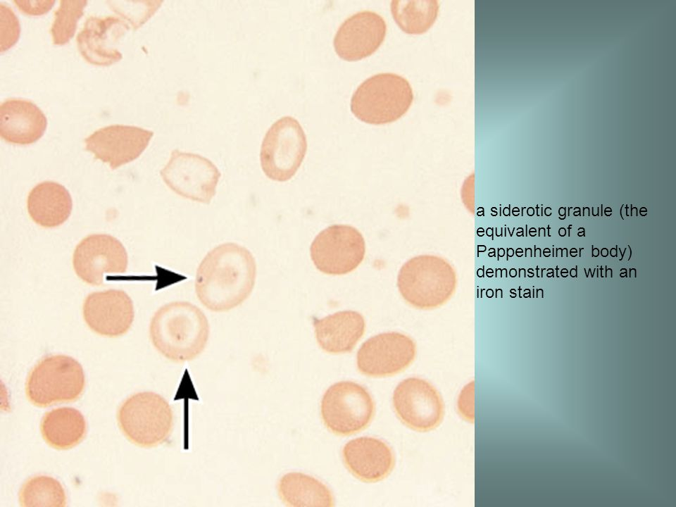 a siderotic granule (the equivalent of a Pappenheimer body) demonstrated with an iron stain