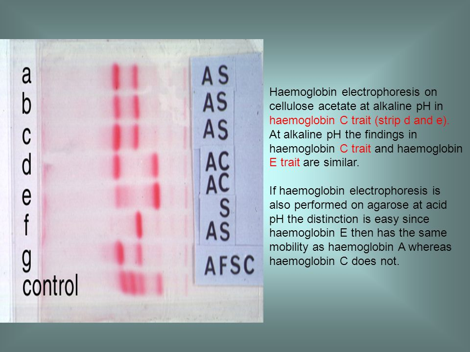 Haemoglobin electrophoresis on cellulose acetate at alkaline pH in haemoglobin C trait (strip d and e).