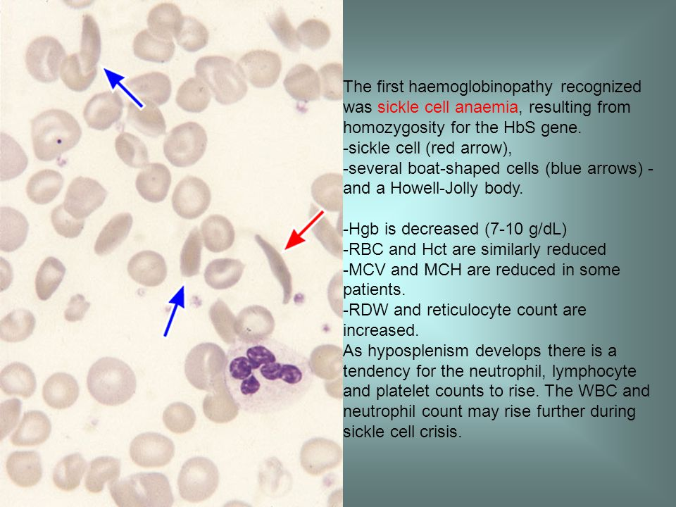 The first haemoglobinopathy recognized was sickle cell anaemia, resulting from homozygosity for the HbS gene.
