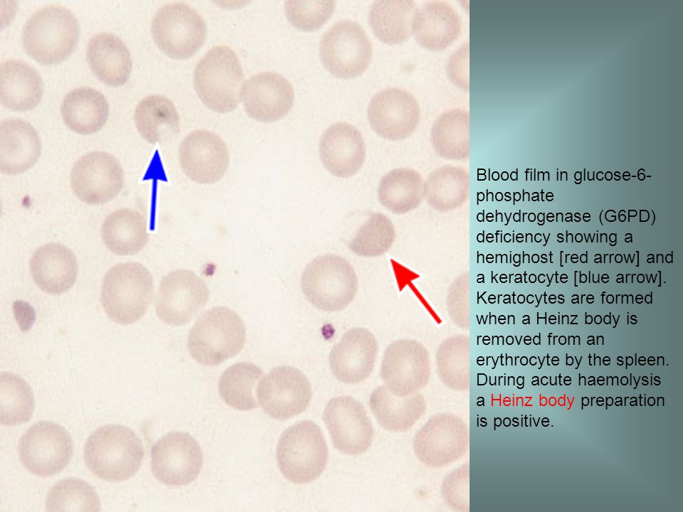 Blood film in glucose-6-phosphate dehydrogenase (G6PD) deficiency showing a hemighost [red arrow] and a keratocyte [blue arrow].