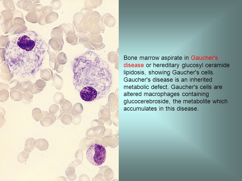 Bone marrow aspirate in Gaucher s disease or hereditary glucosyl ceramide lipidosis, showing Gaucher s cells.
